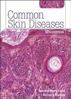 Common Skin Diseases (18th Edition)
