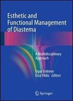 Esthetic And Functional Management Of Diastema: A Multidisciplinary Approach