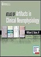 Atlas Of Artifacts In Clinical Neurophysiology