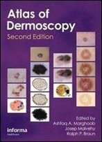 An Atlas Of Dermoscopy (2nd Edition)